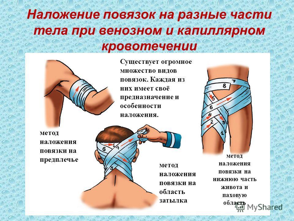 Наложение повязок на разные части тела при венозном и капиллярном кровотечении Существует огромное множество видов повязок. Каждая из них имеет своё предназначение и особенности наложения. метод наложения повязки на предплечье метод наложения повязки