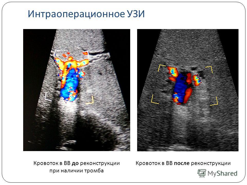 Кровоток в ВВ до реконструкции при наличии тромба Кровоток в ВВ после реконструкции Интраоперационное УЗИ