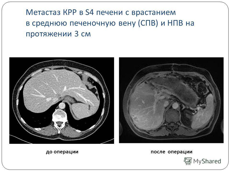 до операциипосле операции Метастаз КРР в S4 печени с врастанием в среднюю печеночную вену (СПВ) и НПВ на протяжении 3 см