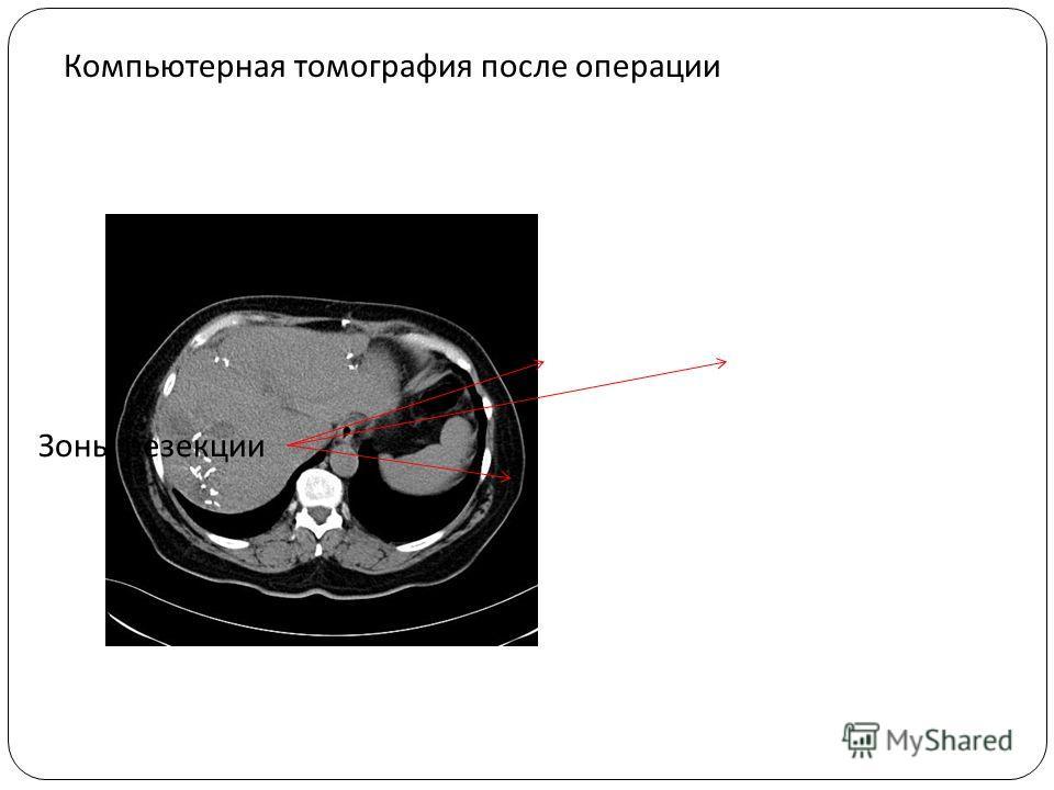Компьютерная томография после операции Зоны резекции