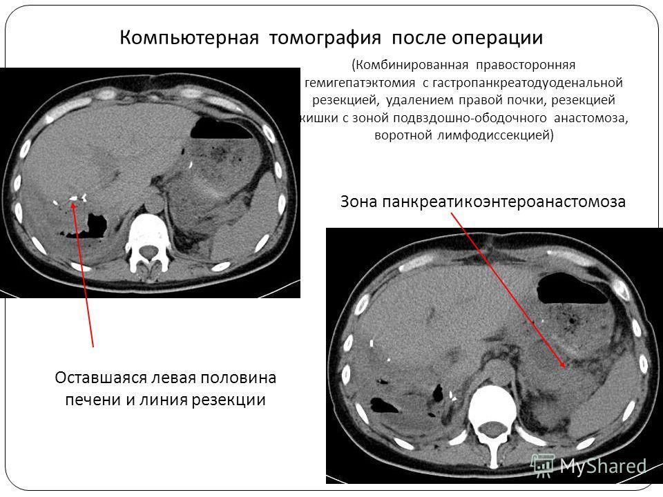 Зона панкреатикоэнтероанастомоза Компьютерная томография после операции Оставшаяся левая половина печени и линия резекции (Комбинированная правосторонняя гемигепатэктомия с гастропанкреатодуоденальной резекцией, удалением правой почки, резекцией кишк