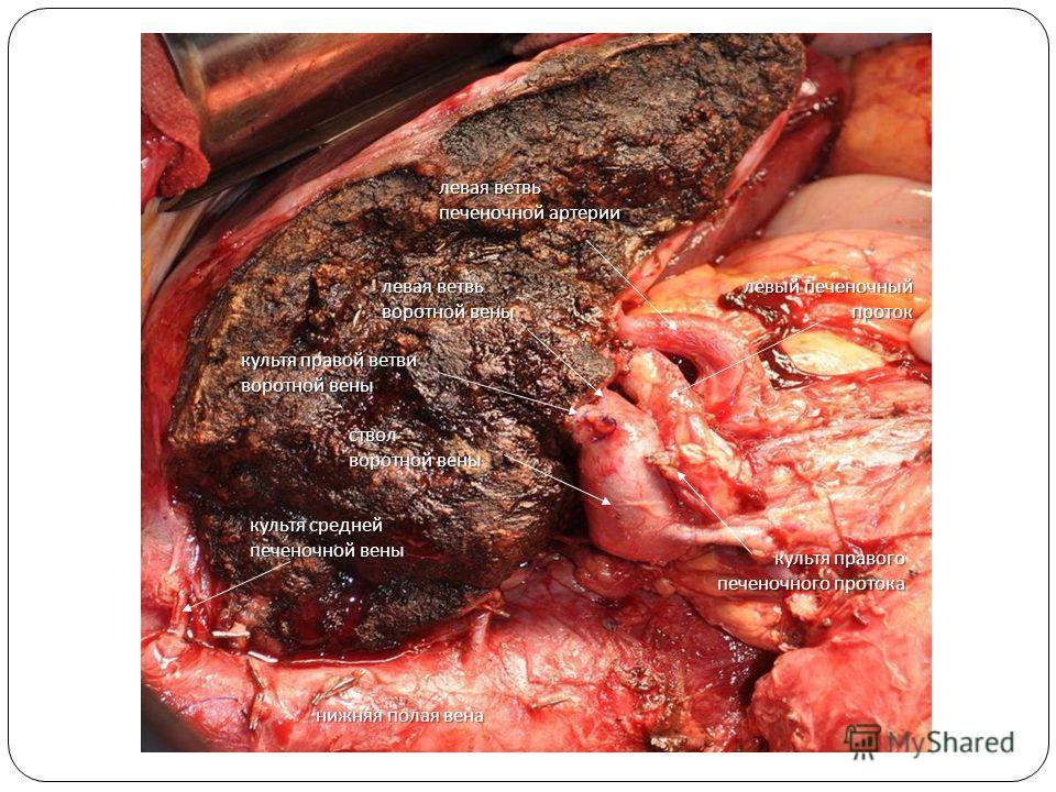 культя правой ветви воротной вены культя правого печеночного протока левый печеночный проток левая ветвь печеночной артерии культя средней печеночной вены ствол воротной вены нижняя полая вена левая ветвь воротной вены