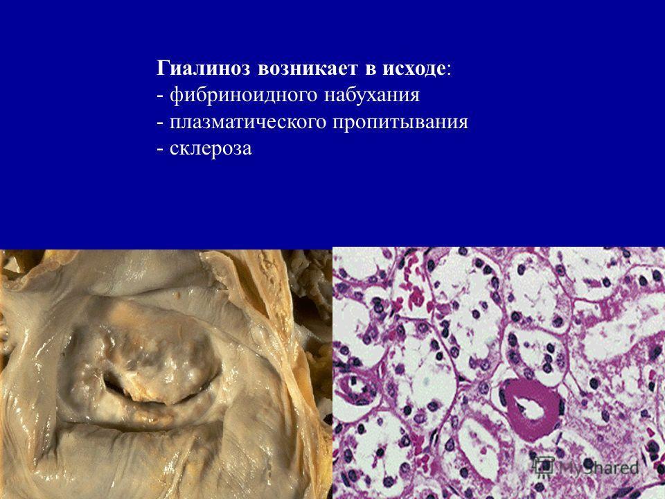 Гиалиноз возникает в исходе: - фибриноидного набухания - плазматического пропитывания - склероза