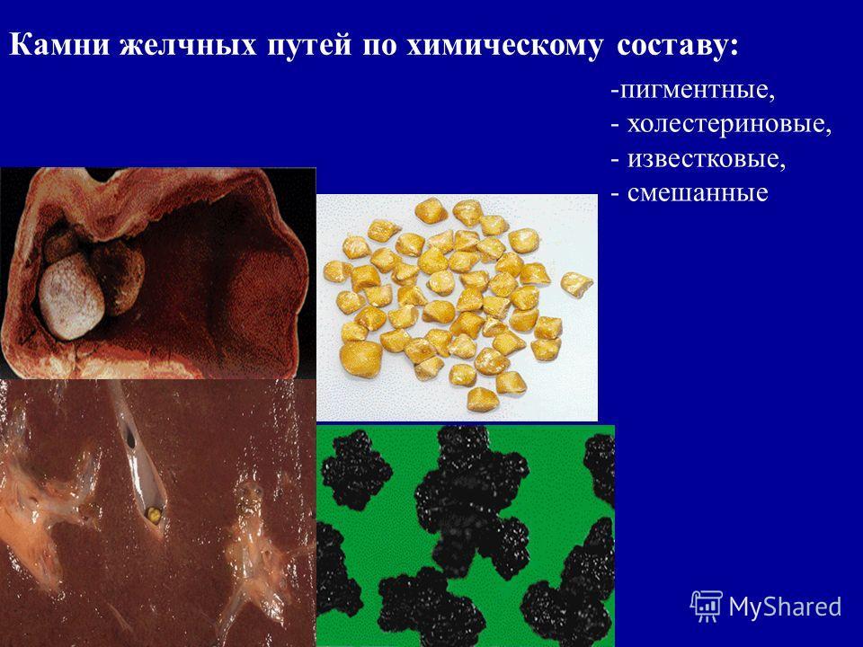 Камни желчных путей по химическому составу: -пигментные, - холестериновые, - известковые, - смешанные