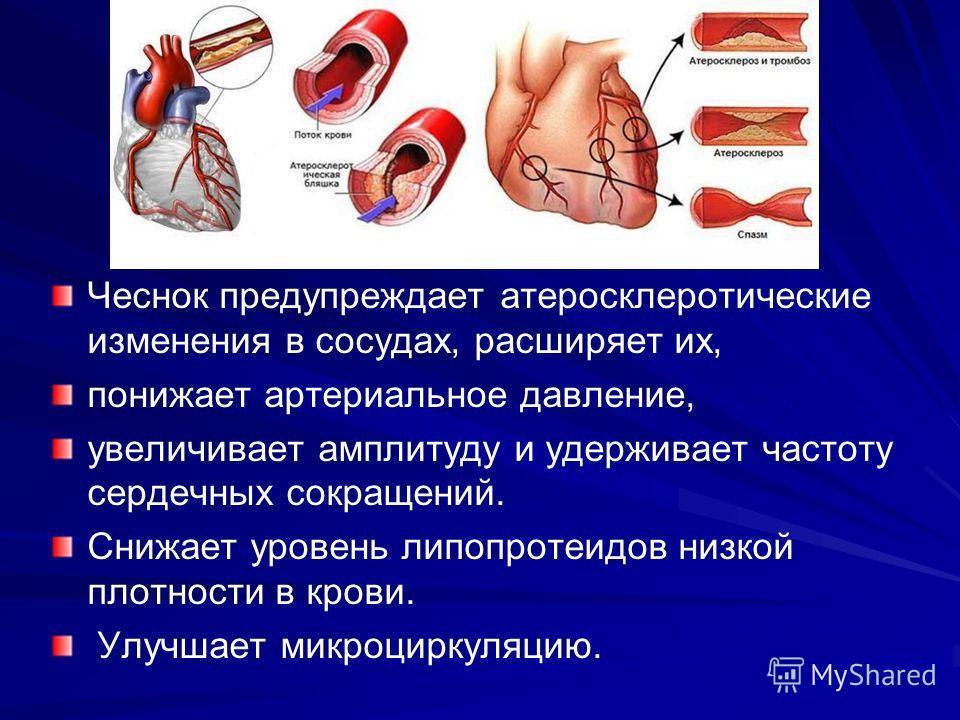 Чеснок предупреждает атеросклеротические изменения в сосудах, расширяет их, понижает артериальное давление, увеличивает амплитуду и удерживает частоту сердечных сокращений. Снижает уровень липопротеидов низкой плотности в крови. Улучшает микроциркуля