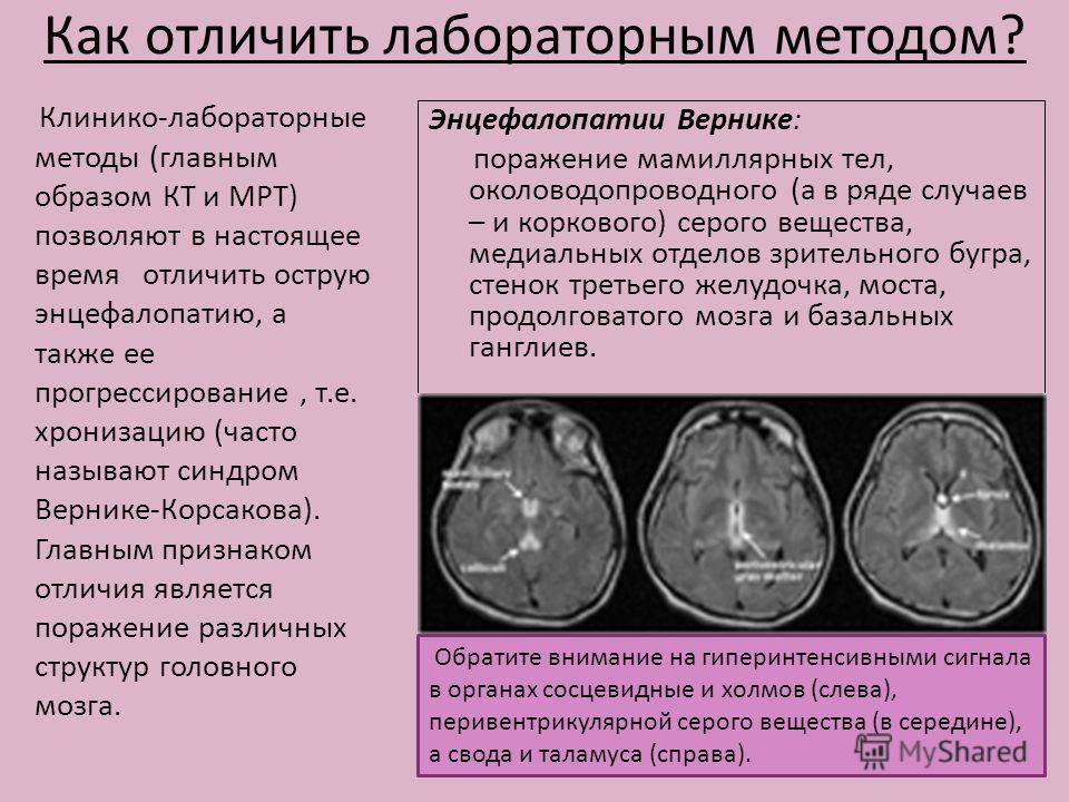 Как отличить лабораторным методом? Клинико-лабораторные методы (главным образом КТ и МРТ) позволяют в настоящее время отличить острую энцефалопатию, а также ее прогрессирование, т.е. хронизацию (часто называют синдром Вернике-Корсакова). Главным приз