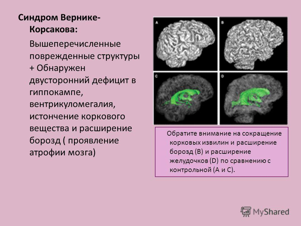 Синдром Вернике- Корсакова: Вышеперечисленные поврежденные структуры + Обнаружен двусторонний дефицит в гиппокампе, вентрикуломегалия, истончение коркового вещества и расширение борозд ( проявление атрофии мозга) Обратите внимание на сокращение корко