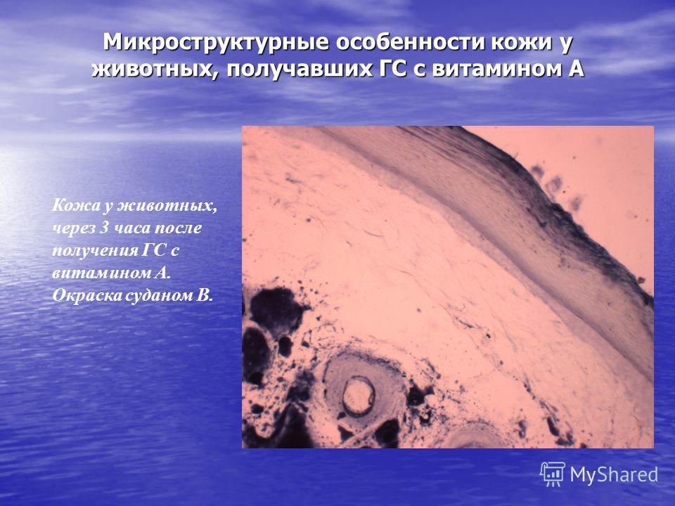 Микроструктурные особенности кожи у животных, получавших ГС с витамином А Кожа у животных, через 3 часа после получения ГС с витамином А. Окраска суданом В.