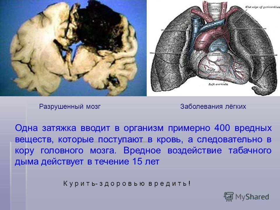Разрушенный мозгЗаболевания лёгких К у р и т ь- з д о р о в ь ю в р е д и т ь ! Одна затяжка вводит в организм примерно 400 вредных веществ, которые поступают в кровь, а следовательно в кору головного мозга. Вредное воздействие табачного дыма действу