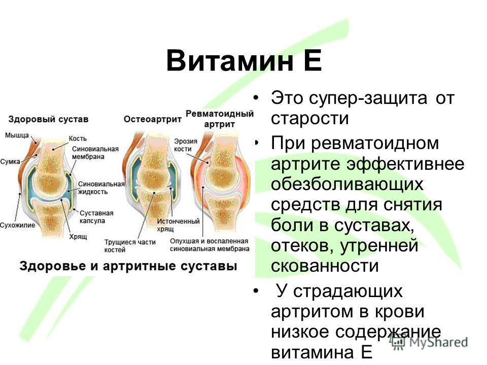 Витамин Е Это супер-защита от старости При ревматоидном артрите эффективнее обезболивающих средств для снятия боли в суставах, отеков, утренней скованности У страдающих артритом в крови низкое содержание витамина Е