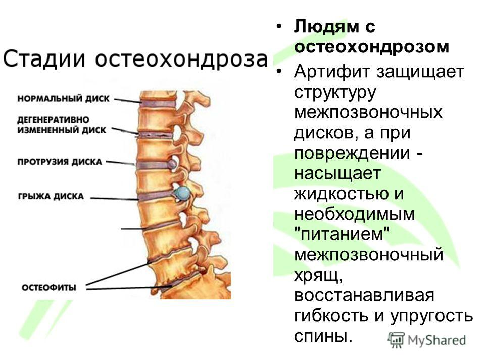 Людям с остеохондрозом Артифит защищает структуру межпозвоночных дисков, а при повреждении - насыщает жидкостью и необходимым питанием межпозвоночный хрящ, восстанавливая гибкость и упругость спины.