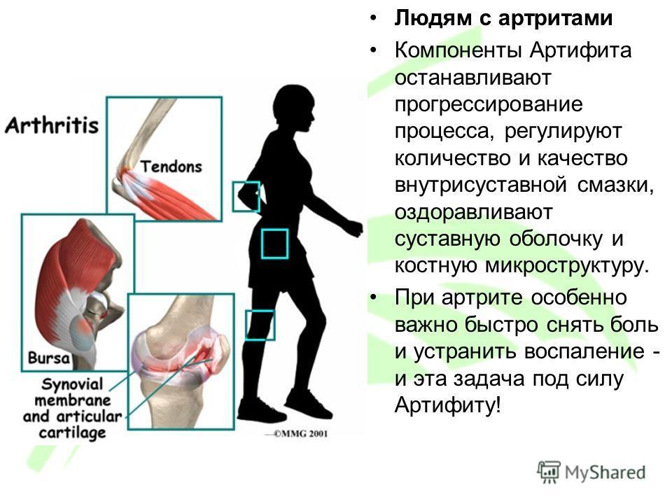 Людям с артритами Компоненты Артифита останавливают прогрессирование процесса, регулируют количество и качество внутрисуставной смазки, оздоравливают суставную оболочку и костную микроструктуру. При артрите особенно важно быстро снять боль и устранит