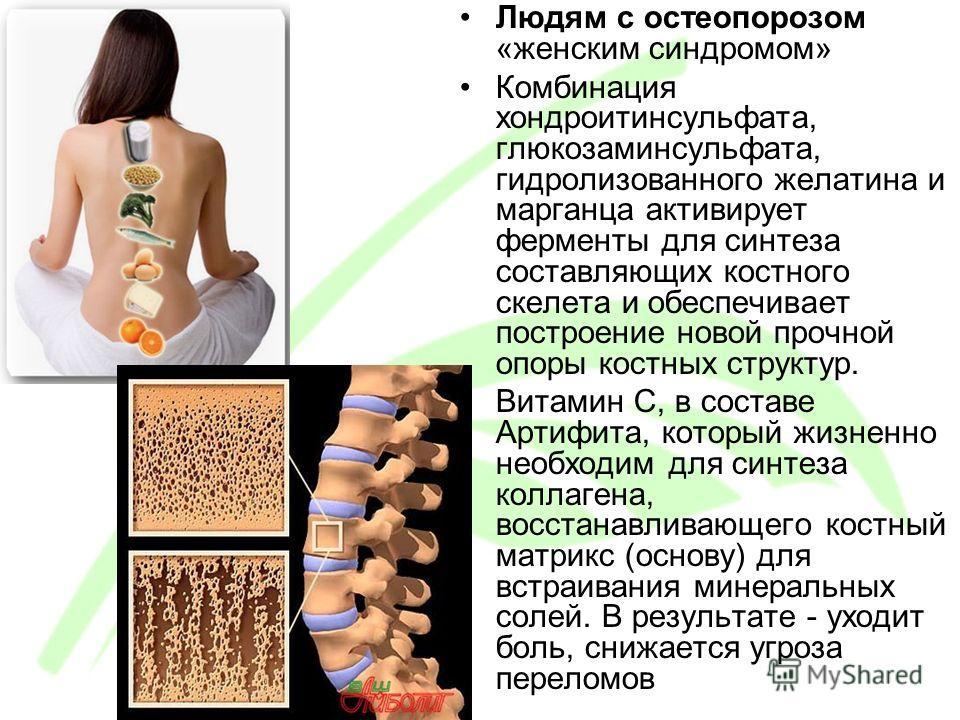 Людям с остеопорозом «женским синдромом» Комбинация хондроитинсульфата, глюкозаминсульфата, гидролизованного желатина и марганца активирует ферменты для синтеза составляющих костного скелета и обеспечивает построение новой прочной опоры костных струк