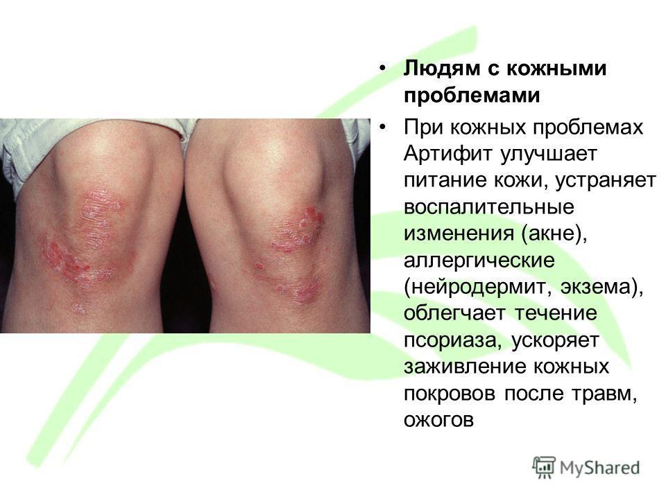 Людям с кожными проблемами При кожных проблемах Артифит улучшает питание кожи, устраняет воспалительные изменения (акне), аллергические (нейродермит, экзема), облегчает течение псориаза, ускоряет заживление кожных покровов после травм, ожогов