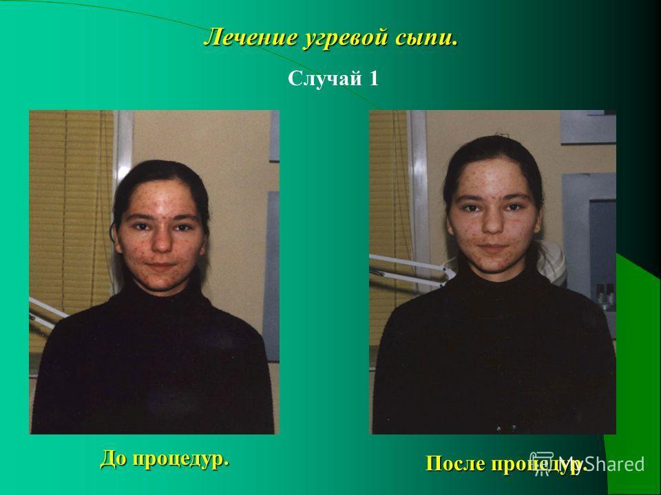 Лечение угревой сыпи. Случай 1 До процедур. После процедур.