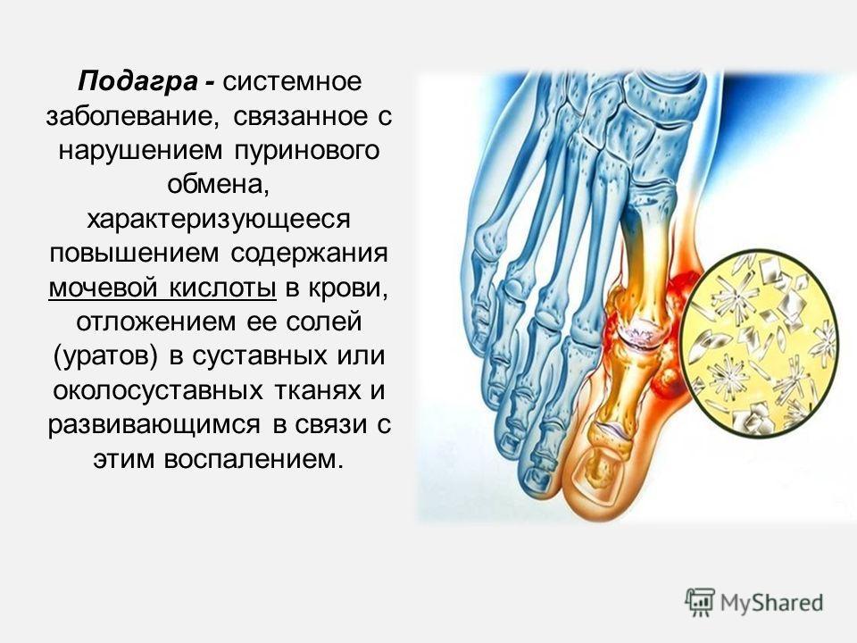 Подагра - системное заболевание, связанное с нарушением пуринового обмена, характеризующееся повышением содержания мочевой кислоты в крови, отложением ее солей (уратов) в суставных или околосуставных тканях и развивающимся в связи с этим воспалением.