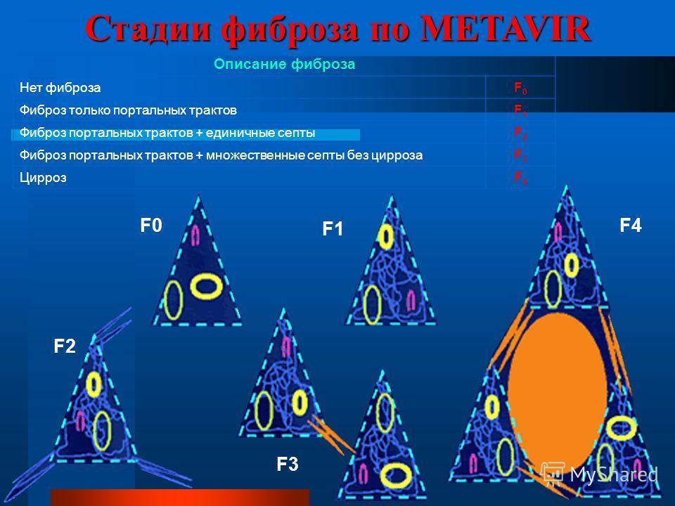 Стадии фиброза по METAVIR Описание фиброза Нет фиброзаF0F0 Фиброз только портальных трактовF1F1 Фиброз портальных трактов + единичные септы F2F2 Фиброз портальных трактов + множественные септы без цирроза F3F3 ЦиррозF4F4 F0 F1 F2 F3 F4