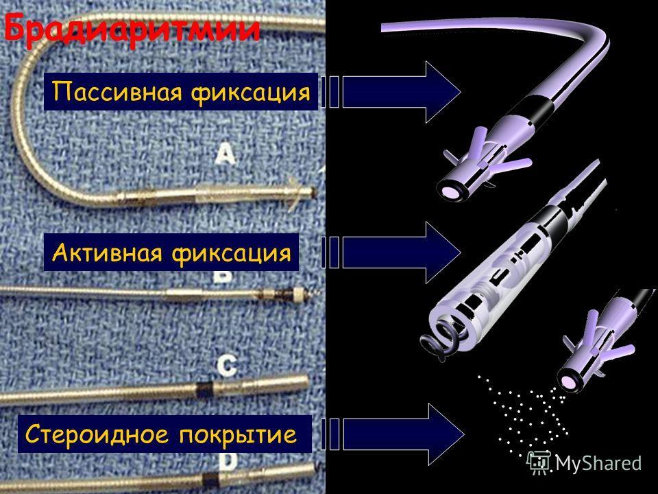 Брадиаритмии Пассивная фиксация Активная фиксация Стероидное покрытие