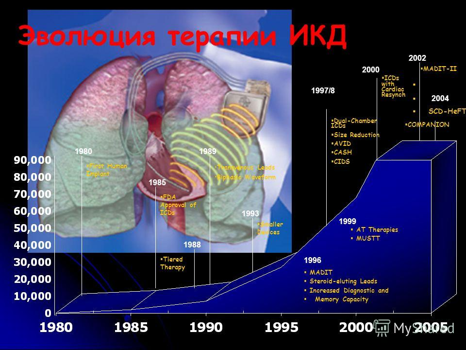 Эволюция терапии ИКД First Human Implant FDA Approval of ICDs Transvenous Leads Biphasic Waveform Smaller Devices Dual-Chamber ICDs Size Reduction AVID CASH CIDS AT Therapies MUSTT ICDs with Cardiac Resynch 1980 1985 1989 1993 1996 1997/8 1999 2000 2
