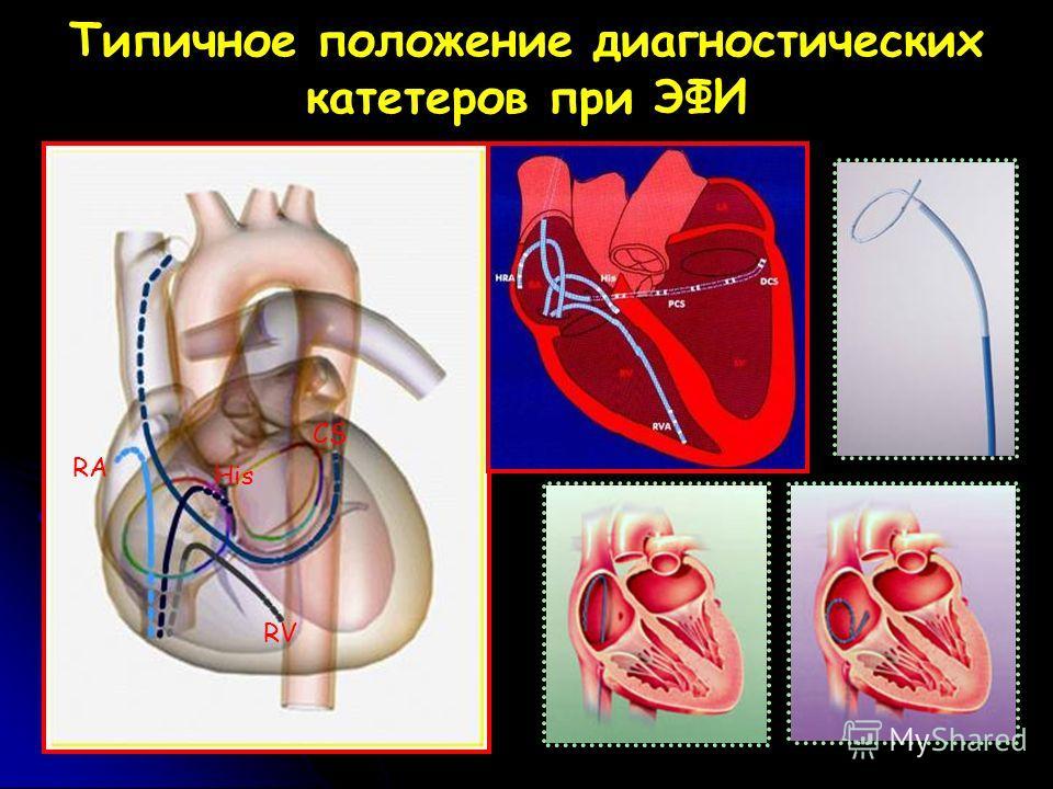 Типичное положение диагностических катетеров при ЭФИ RV CS His RA