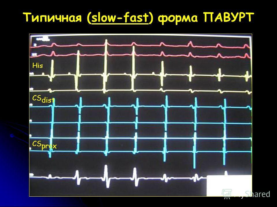 Типичная (slow-fast) форма ПАВУРТ His CS dist CS prox