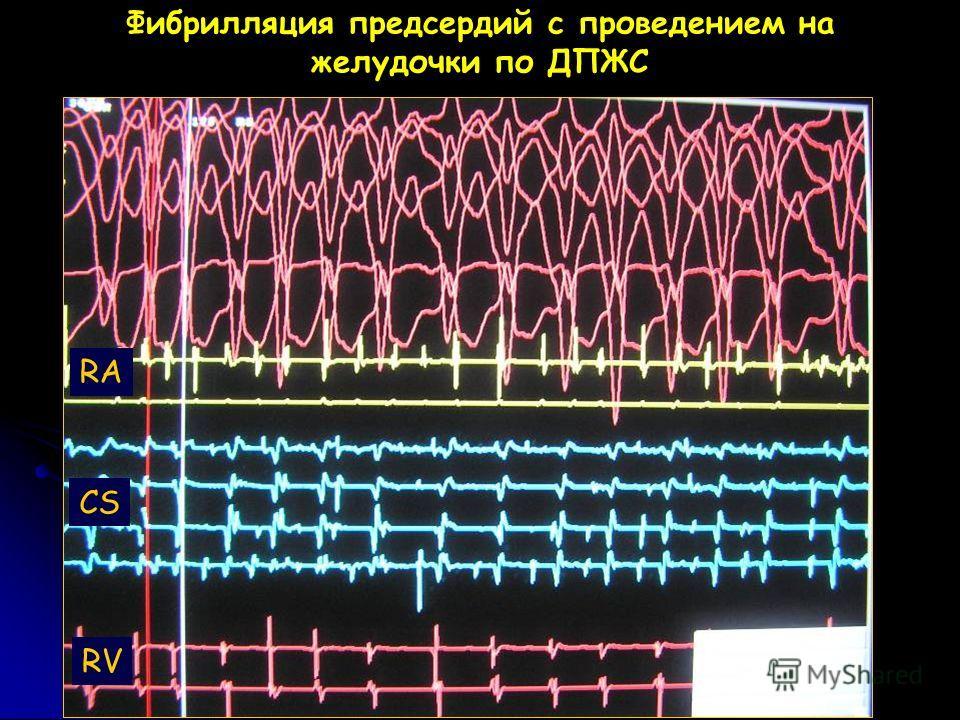 Фибрилляция предсердий с проведением на желудочки по ДПЖС RA CS RV