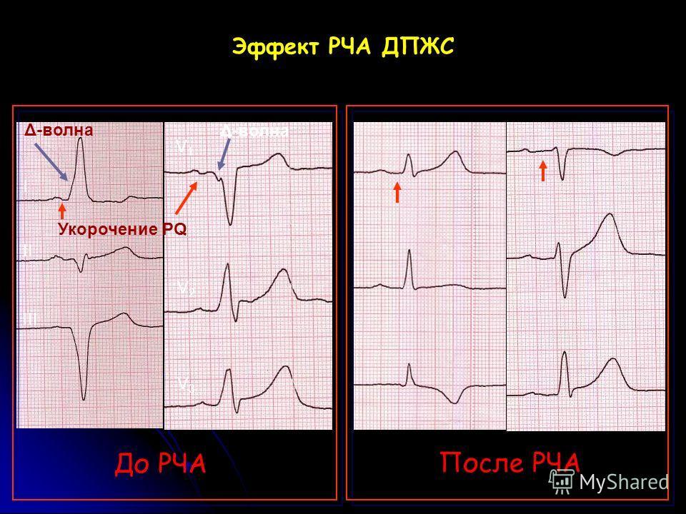 Эффект РЧА ДПЖС До РЧА После РЧА V1V1 V2V2 V3V3 I II III Δ-волна Укорочение PQ