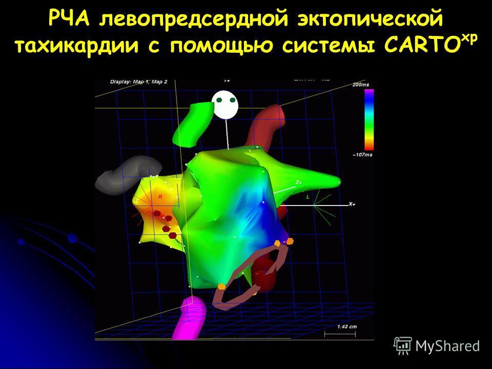 РЧА левопредсердной эктопической тахикардии с помощью системы CARTO xp