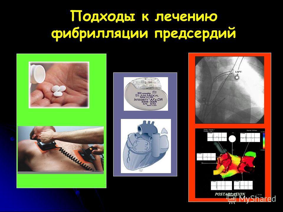 Подходы к лечению фибрилляции предсердий