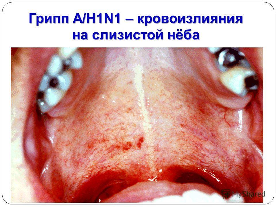 Грипп A/H1N1 – кровоизлияния на слизистой нёба