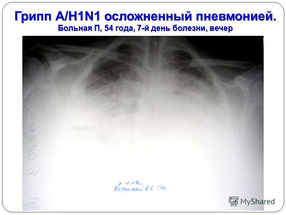 Грипп А/H1N1 осложненный пневмонией. Больная П, 54 года, 7-й день болезни, вечер
