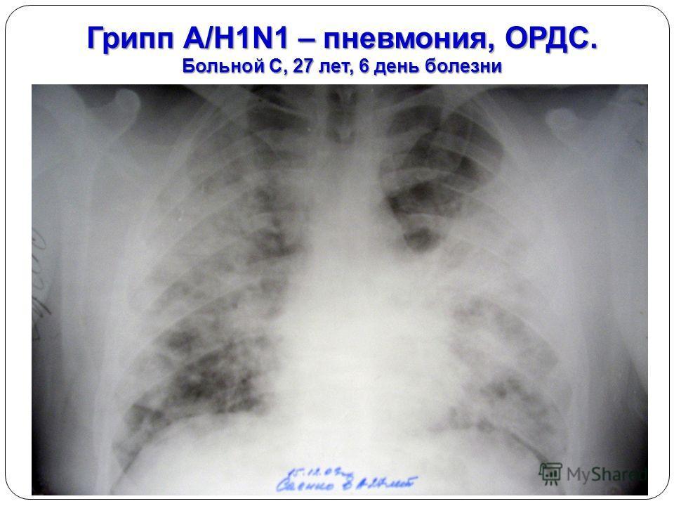 Грипп А/H1N1 – пневмония, ОРДС. Больной С, 27 лет, 6 день болезни