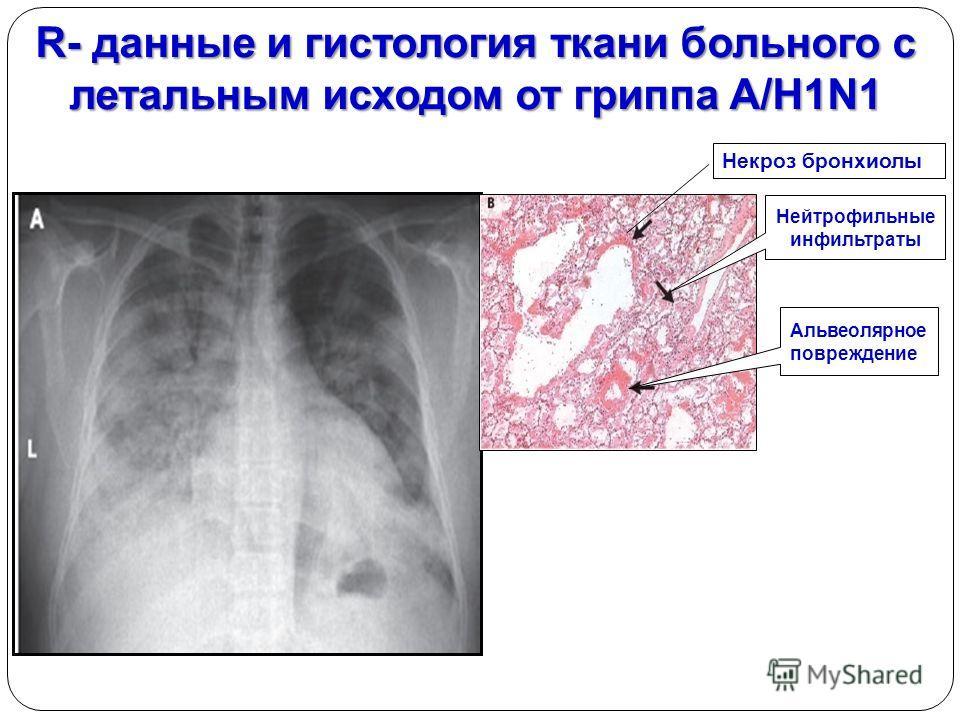 R- данные и гистология ткани больного с летальным исходом от гриппа A/H1N1 Некроз бронхиолы Нейтрофильные инфильтраты Альвеолярное повреждение