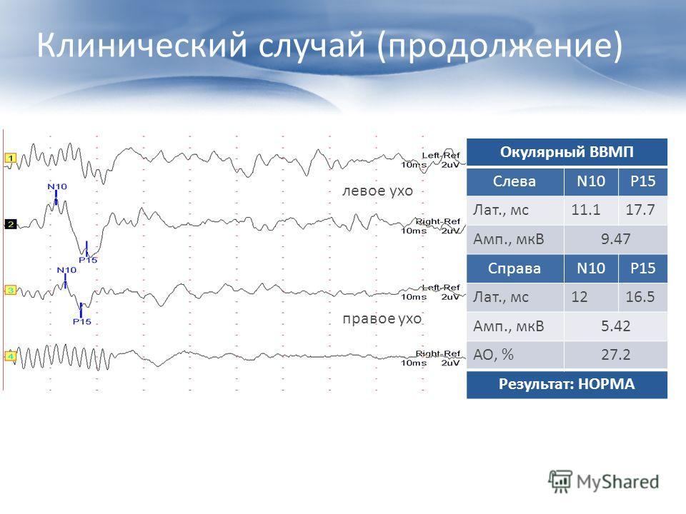 Клинический случай (продолжение) Окулярный ВВМП СлеваN10P15 Лат., мс11.117.7 Амп., мкВ9.47 СправаN10P15 Лат., мс1216.5 Амп., мкВ5.42 АО, %27.2 Результат: НОРМА левое ухо правое ухо