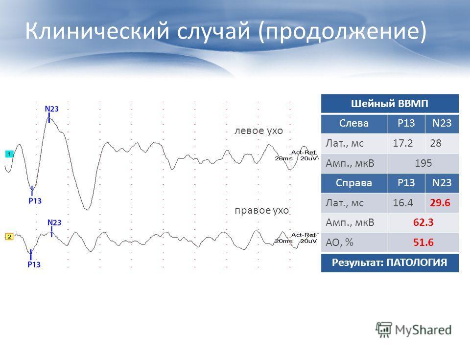 Клинический случай (продолжение) Шейный ВВМП СлеваP13N23 Лат., мс17.228 Амп., мкВ195 СправаP13N23 Лат., мс16.429.6 Амп., мкВ62.3 АО, %51.6 Результат: ПАТОЛОГИЯ левое ухо правое ухо