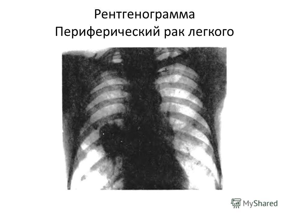 Рентгенограмма Периферический рак легкого