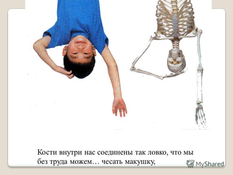 Когда мы лежим, кости выглядят так.