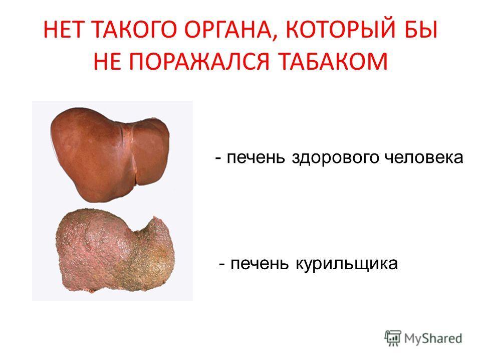 НЕТ ТАКОГО ОРГАНА, КОТОРЫЙ БЫ НЕ ПОРАЖАЛСЯ ТАБАКОМ - печень здорового человека - печень курильщика