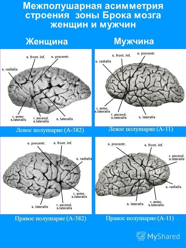 Межполушарная асимметрия строения зоны Брока мозга женщин и мужчин Правое полушарие (А-11) Левое полушарие (А-11) s. precentr. s. front. inf. s. lateralis s. radialis r. ascend. s.lateralis r. anter. s.lateralis s. precentr. s. front. inf. s. lateral