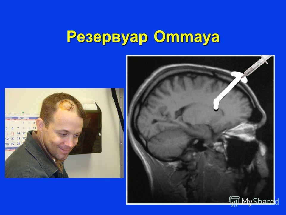 Резервуар Ommaya