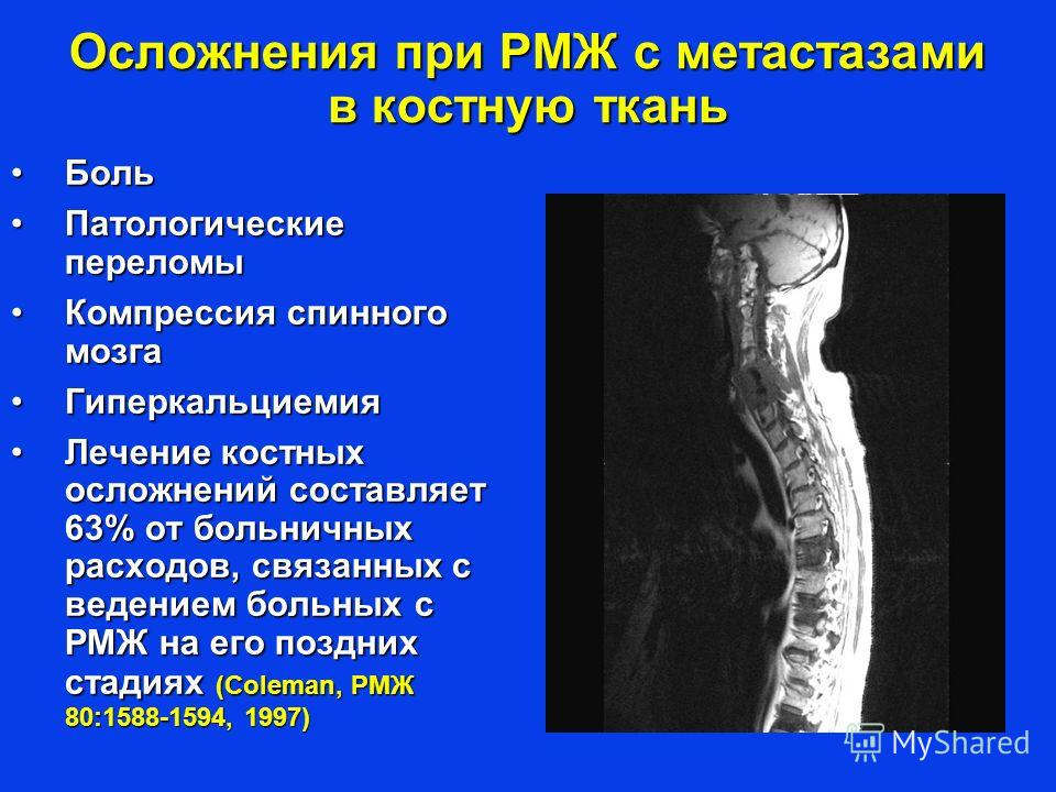 Осложнения при РМЖ с метастазами в костную ткань БольБоль Патологические переломыПатологические переломы Компрессия спинного мозгаКомпрессия спинного мозга ГиперкальциемияГиперкальциемия Лечение костных осложнений составляет 63% от больничных расходо