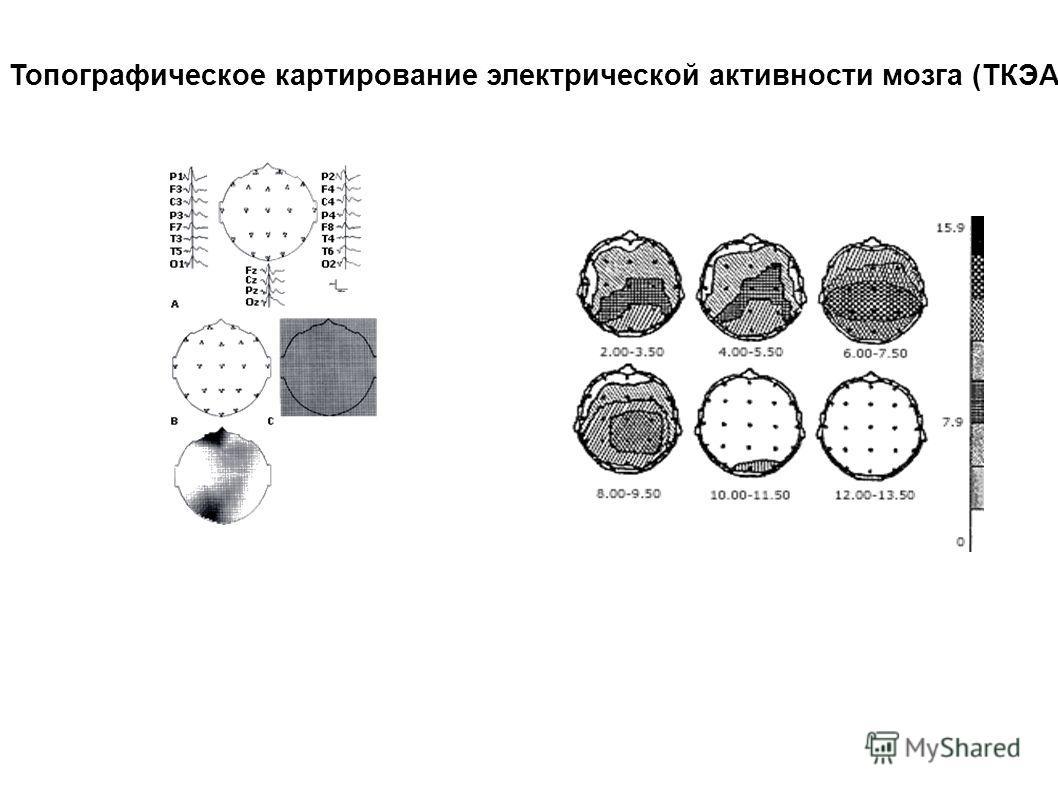 Топографическое картирование электрической активности мозга (ТКЭАМ)