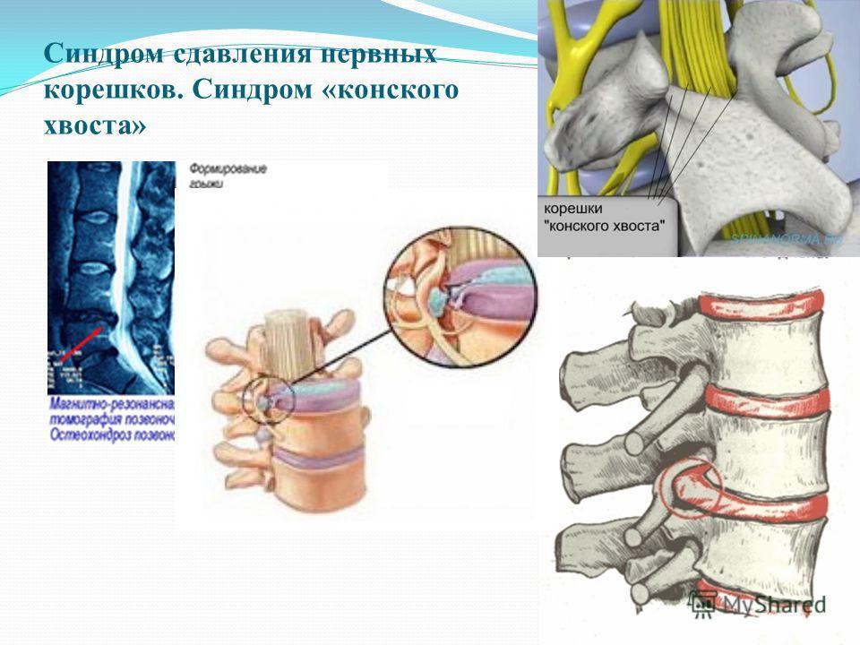 Синдром сдавления нервных корешков. Синдром «конского хвоста»