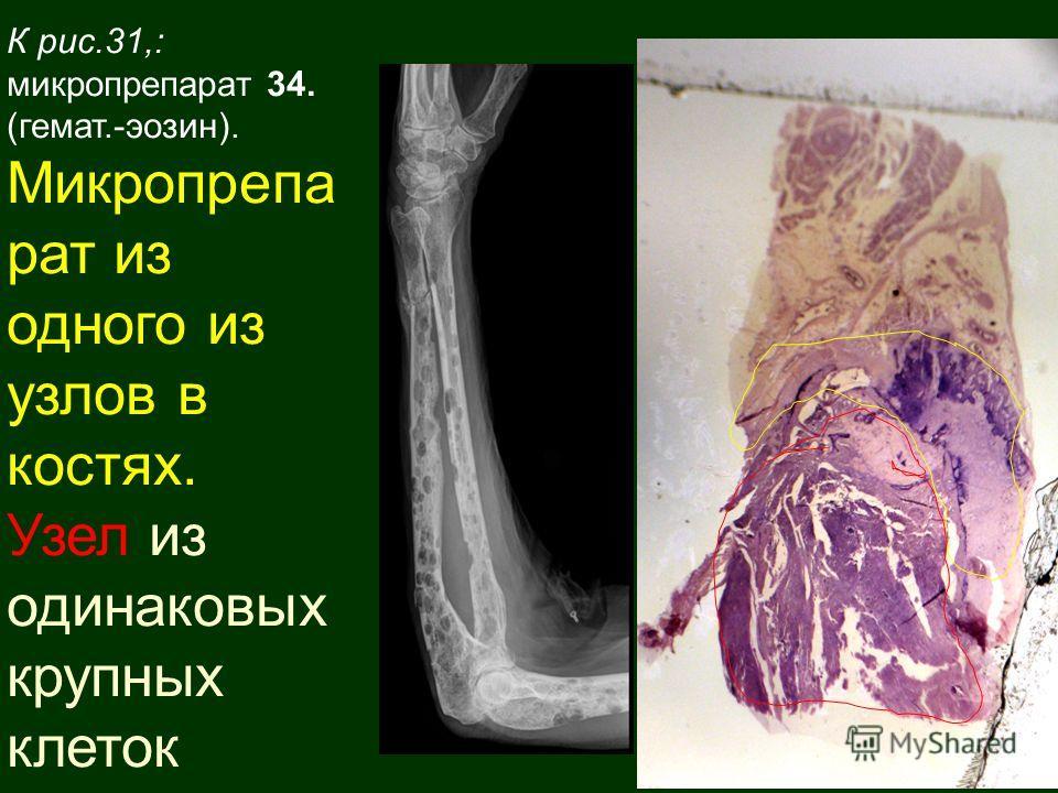 К рис.31,: микропрепарат 34. (гемат.-эозин). Микропрепа рат из одного из узлов в костях. Узел из одинаковых крупных клеток