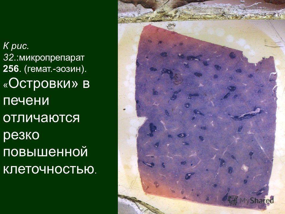 К рис. 32.:микропрепарат 256. (гемат.-эозин). « Островки» в печени отличаются резко повышенной клеточностью.