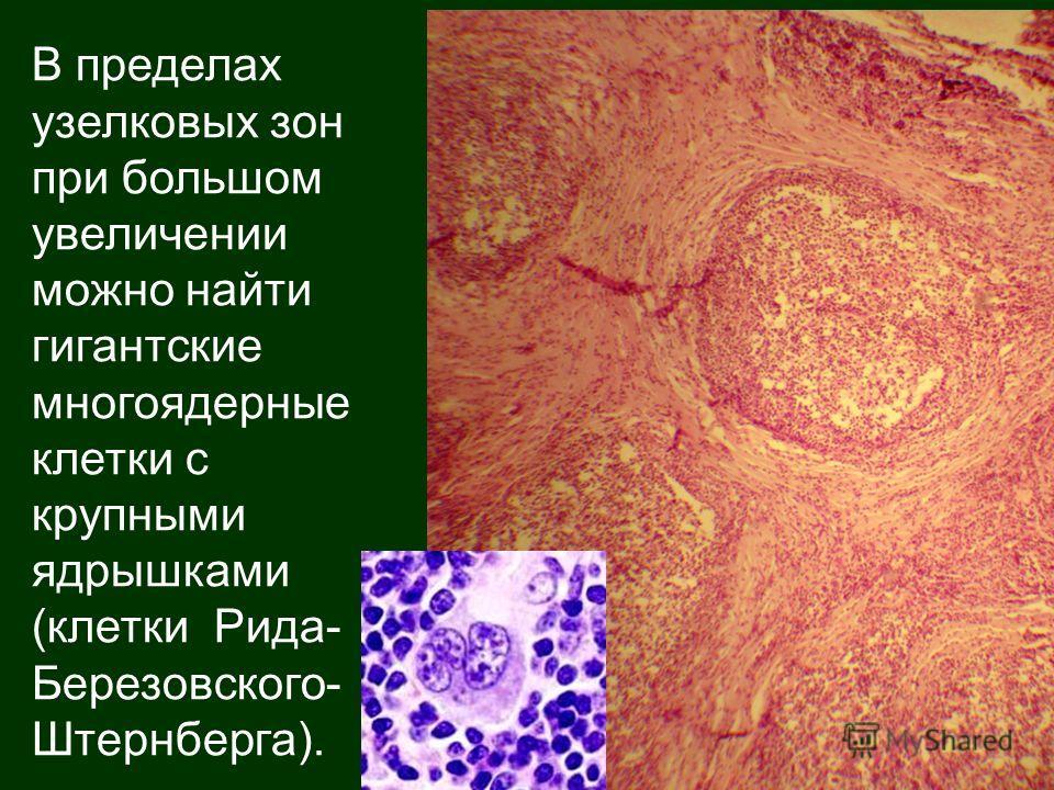 В пределах узелковых зон при большом увеличении можно найти гигантские многоядерные клетки с крупными ядрышками (клетки Рида- Березовского- Штернберга).