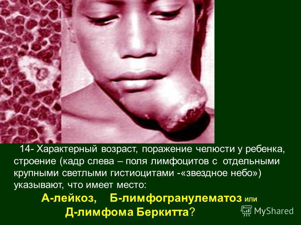 Лимфома Беркитта фото