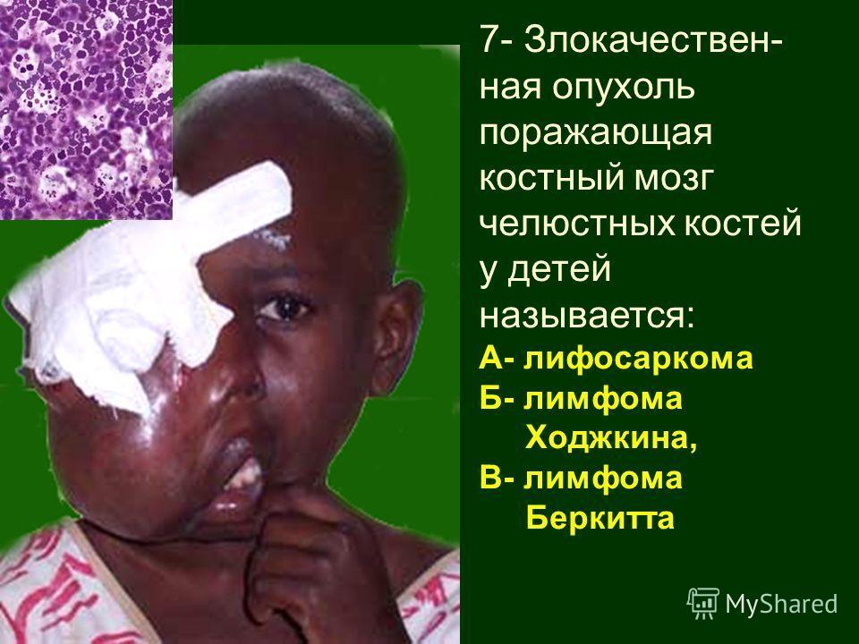 7- Злокачествен- ная опухоль поражающая костный мозг челюстных костей у детей называется: А- лифосаркома Б- лимфома Ходжкина, В- лимфома Беркитта