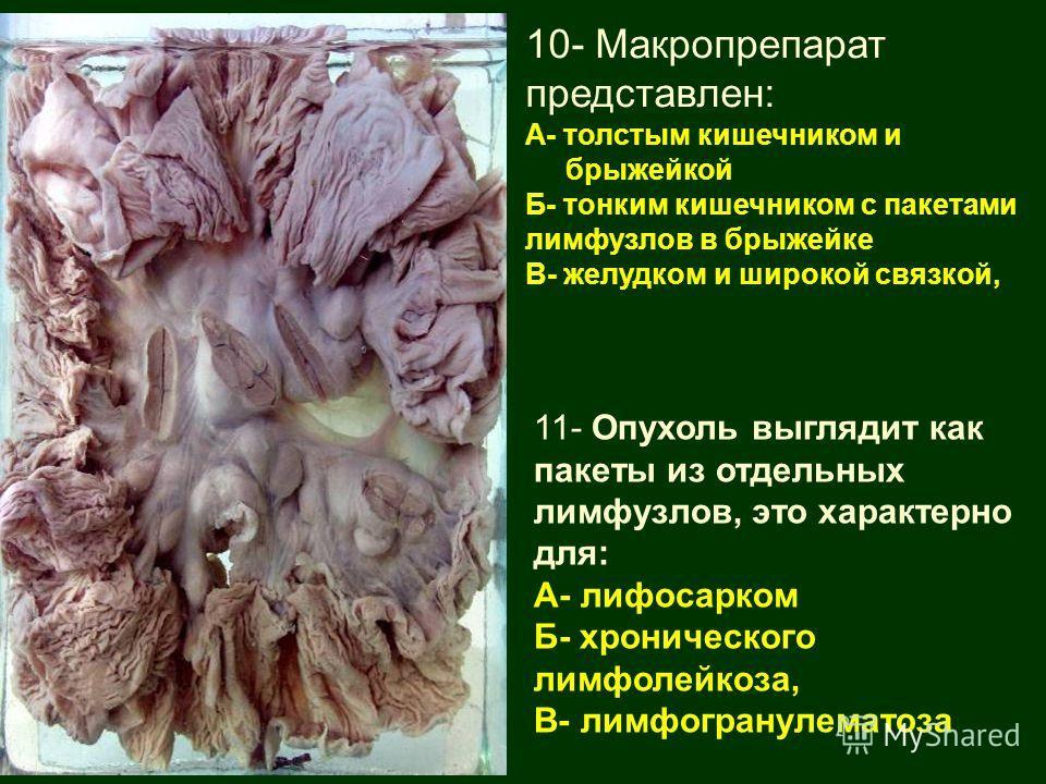 10- Макропрепарат представлен: А- толстым кишечником и брыжейкой Б- тонким кишечником с пакетами лимфузлов в брыжейке В- желудком и широкой связкой, 11- Опухоль выглядит как пакеты из отдельных лимфузлов, это характерно для: А- лифосарком Б- хроничес