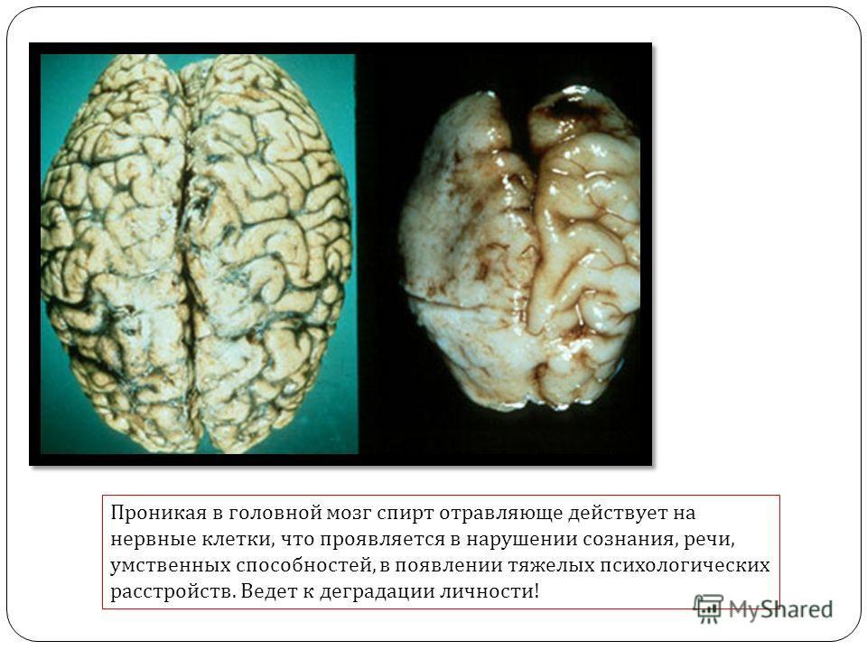 Проникая в головной мозг спирт отравляюще действует на нервные клетки, что проявляется в нарушении сознания, речи, умственных способностей, в появлении тяжелых психологических расстройств. Ведет к деградации личности!